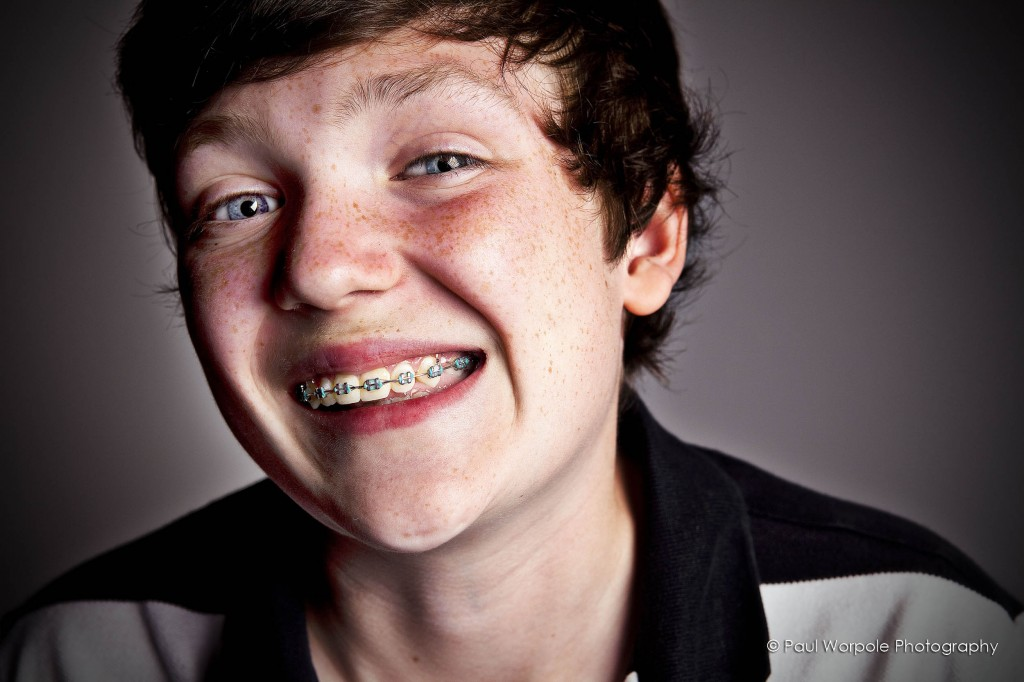 Kid with a Brace Face - Advertising Portrait of young boy with braces and a massive smile by Paul Worpole Photography