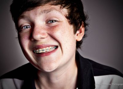Poatrait of young boy with braces and a massive smile by Paul Worpole